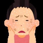 乾燥肌でかゆい!粉ふき肌の原因と対策について