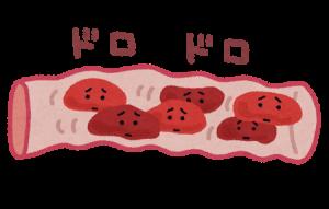 詰まった血管