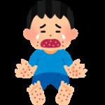 手足口病とは?潜伏期間と感染期間・いつまでうつるの?